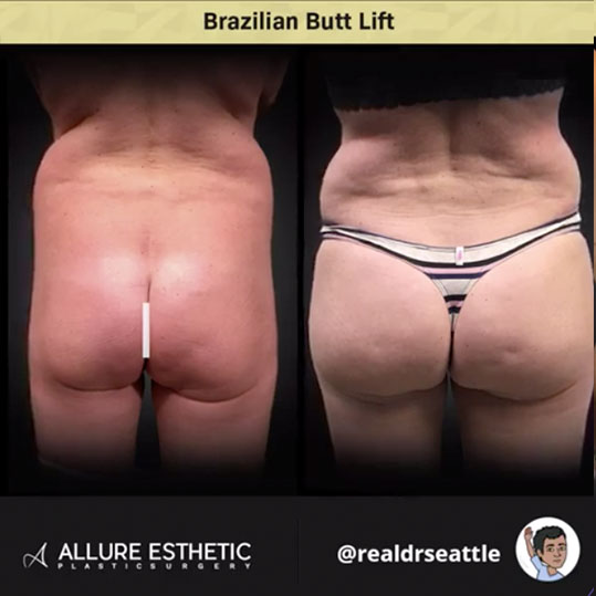 Brazilian Butt Lift in Seattle (BBL) by Dr. Sajan aka Real Dr. Seattle