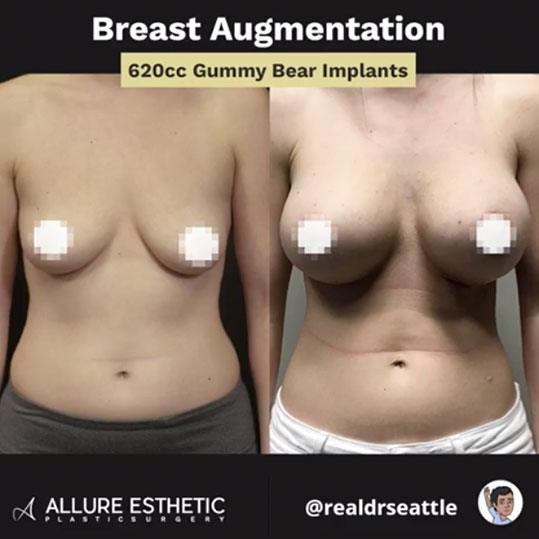 Seattle Breast Augmentation Before & After Pictures | RealDrSeattle