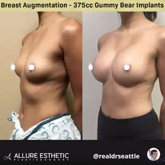 Seattle's Top Plastic Surgeon - Before and Afters - 375cc Gummy Implants