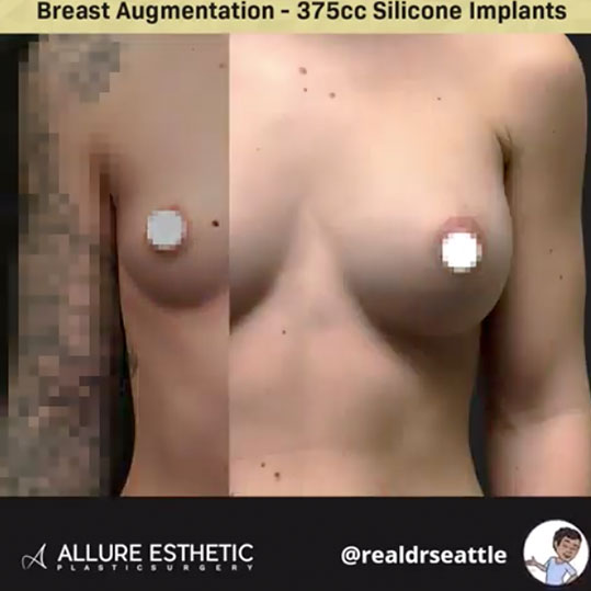 375cc Silicone Implants from Seattle's Top Plastic Surgeon Dr. Sajan