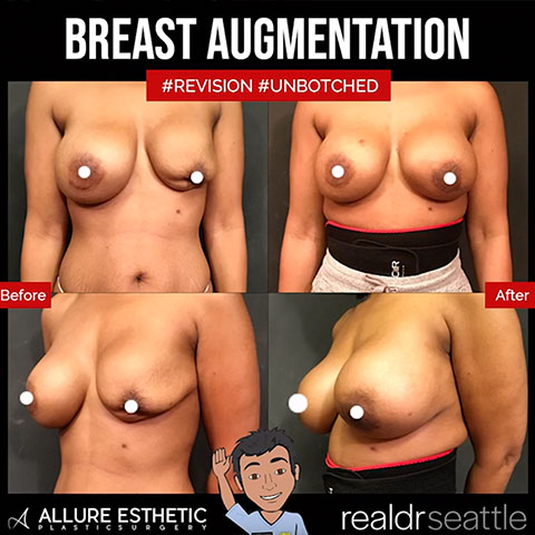 Breast Augmentation to FIX BOTCHED BREAT IMPLANTS with repair of capsular contracture!