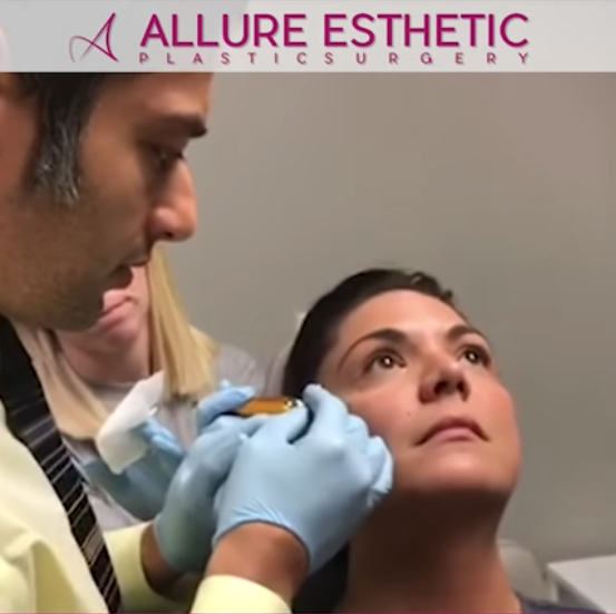 Under Eye Filler Injection | Tear Trough Filler with Cannula