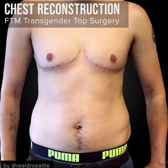 Chest Reconstruction - Female to Male - Before & After Pictures