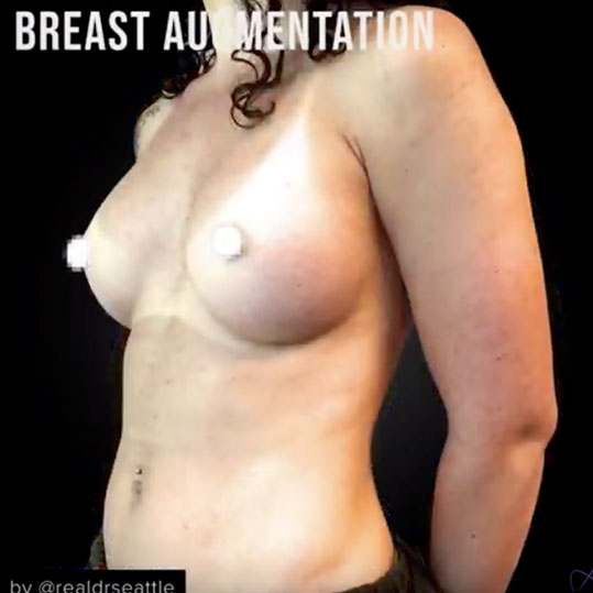 Breast Augmentation, Gummy Bear Implants - Before & After Pictures