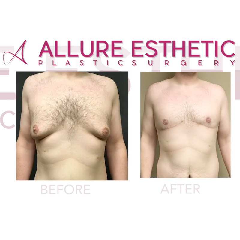 Male Breast Reduction Seattle Gynecomastia