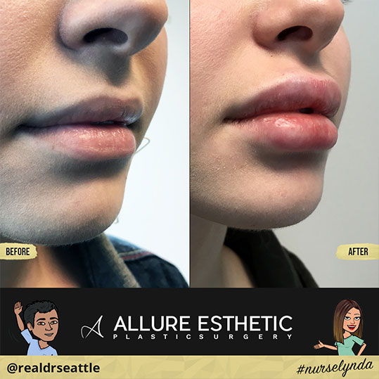 Restylane-L Lip Filler Injections in Seattle | Before and After Progression