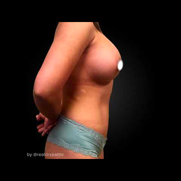 Mommy Makeover Before & After - Liposuction, Tummy Tuck & Breast Augmentation