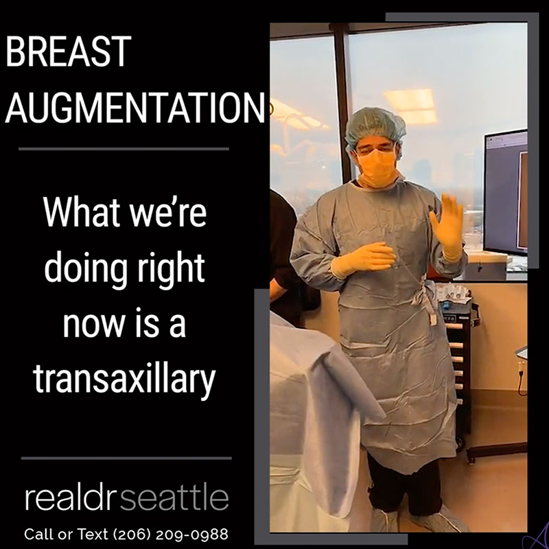 Transgender Breast Augmentation 600cc Silicone Implantsr