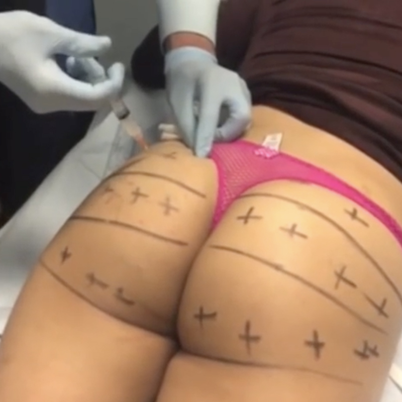 Non Surgical Brazilian Butt Lift