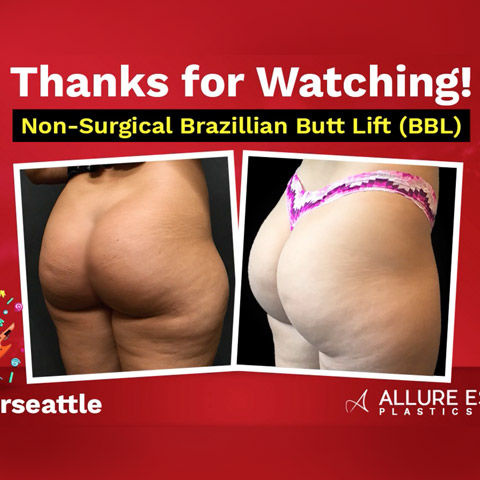 Non Surgical Brazilian Butt Lift (BBL)