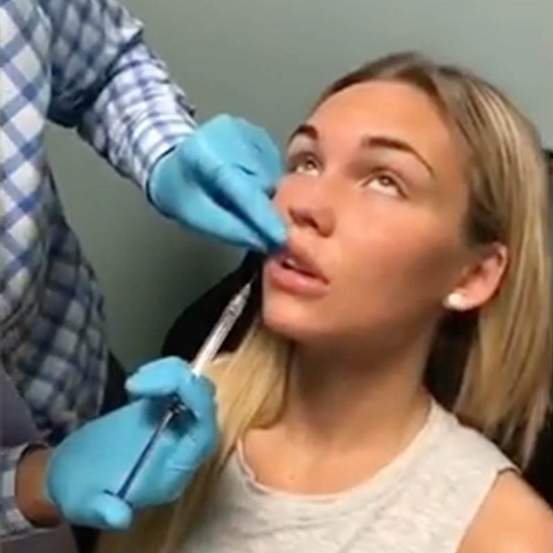 Lip Injection using Micro Droplet Technique