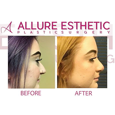 Rhinoplasty Nose Job 2018