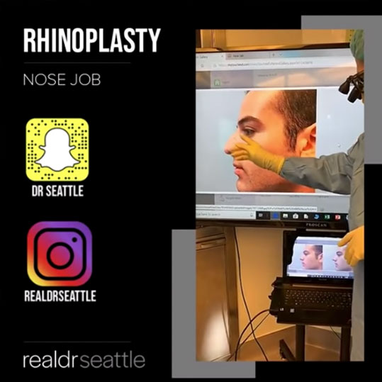 Nose Job Surgery (Rhinoplasty) by Top Seattle Plastic Surgeon