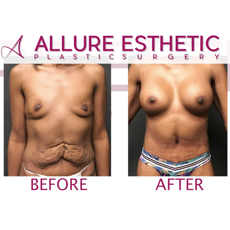 Tummy Tuck Results with Breast Augmentation Mommy Makeover Seattle