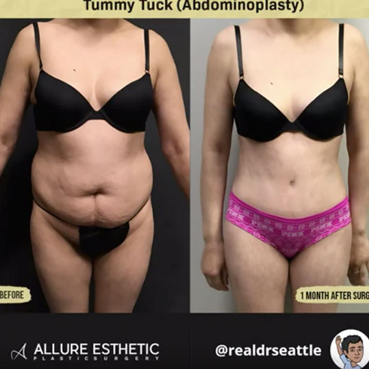 Tummy Tuck (Abdominoplasty ) from Dr. Sajan aka Dr. Seattle