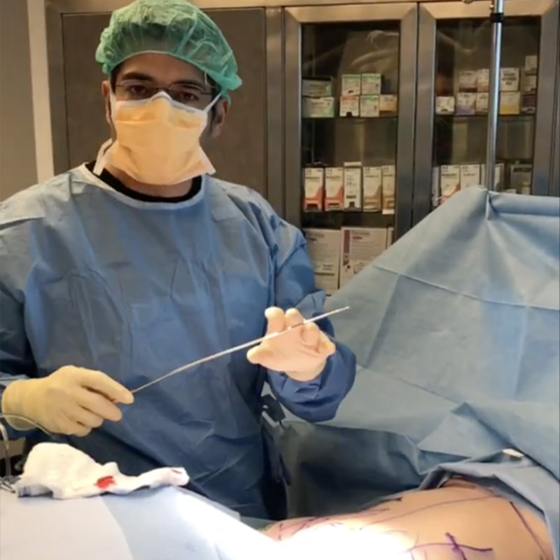 Vaser HD Liposuction