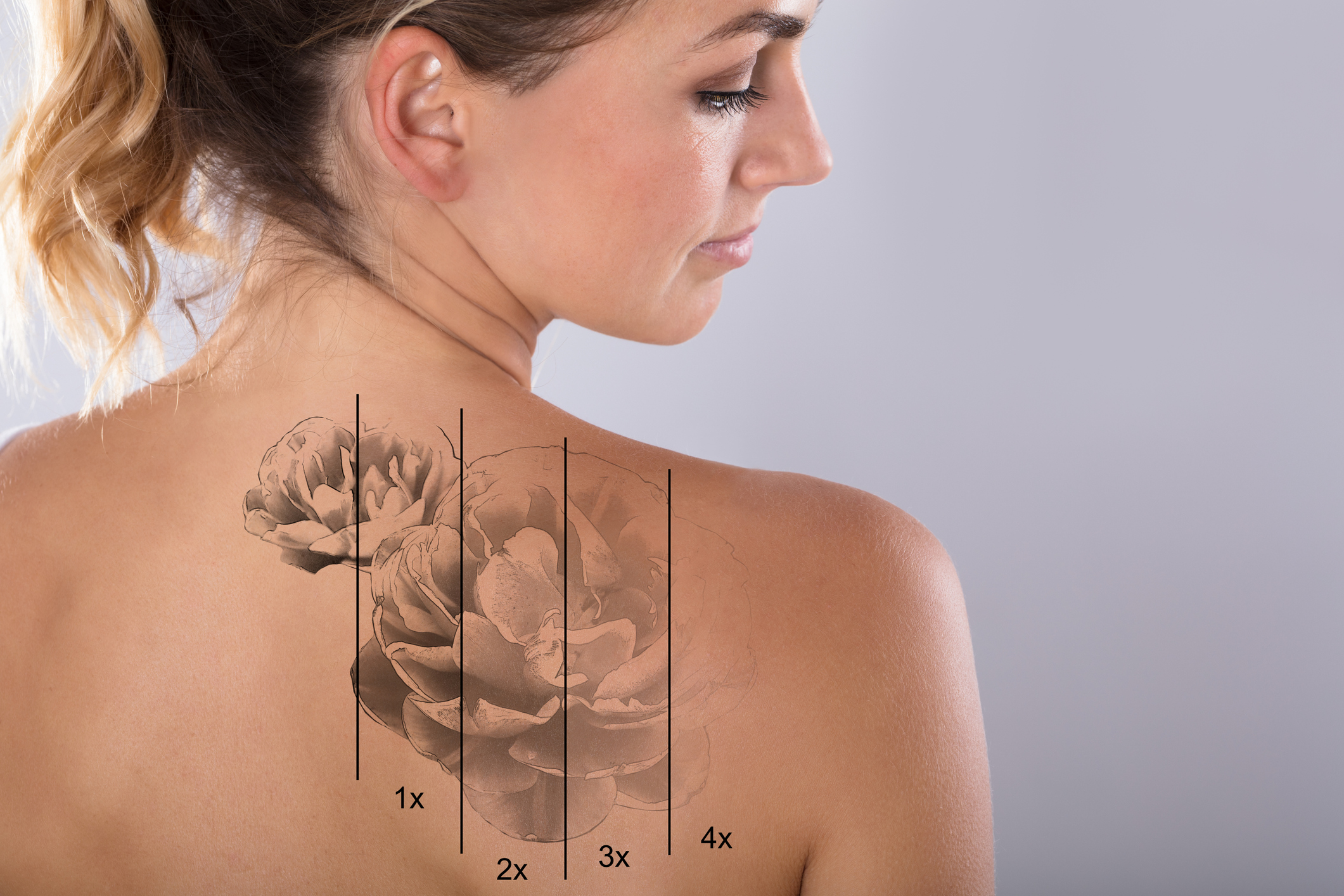 Tattoo Removal in Seattle