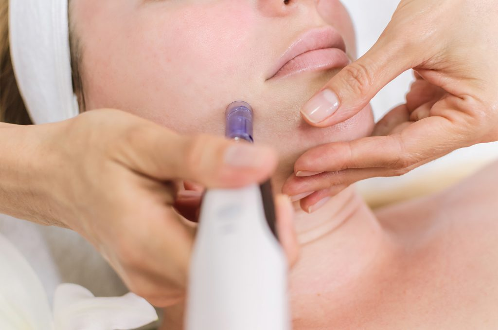 Dangers of at Home Microneedling