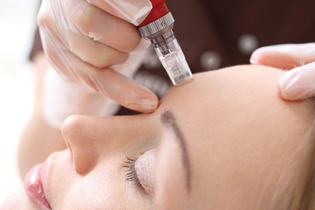 Microneedling Scar Removal Treatment In Seattle