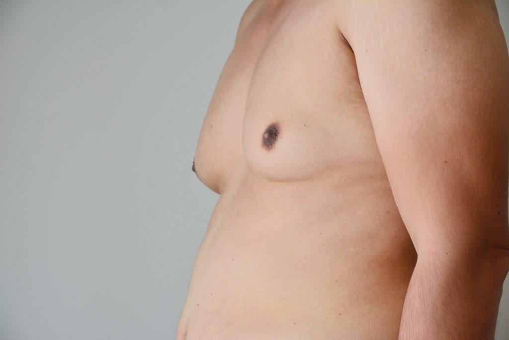 Gynecomastia Causes