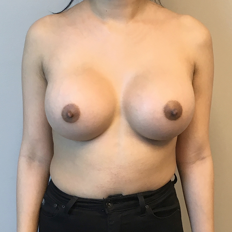 Breast Augmentation Houston, Tx