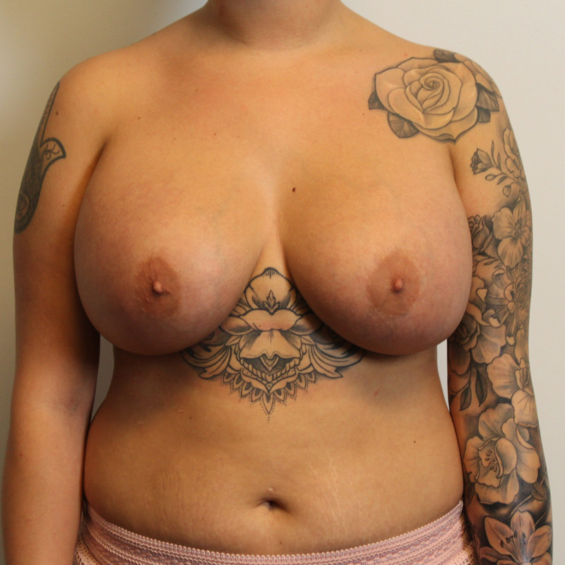 Pros and cons of breast implant