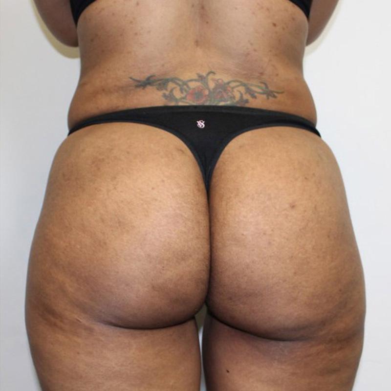 Non butt Nude Photos 67